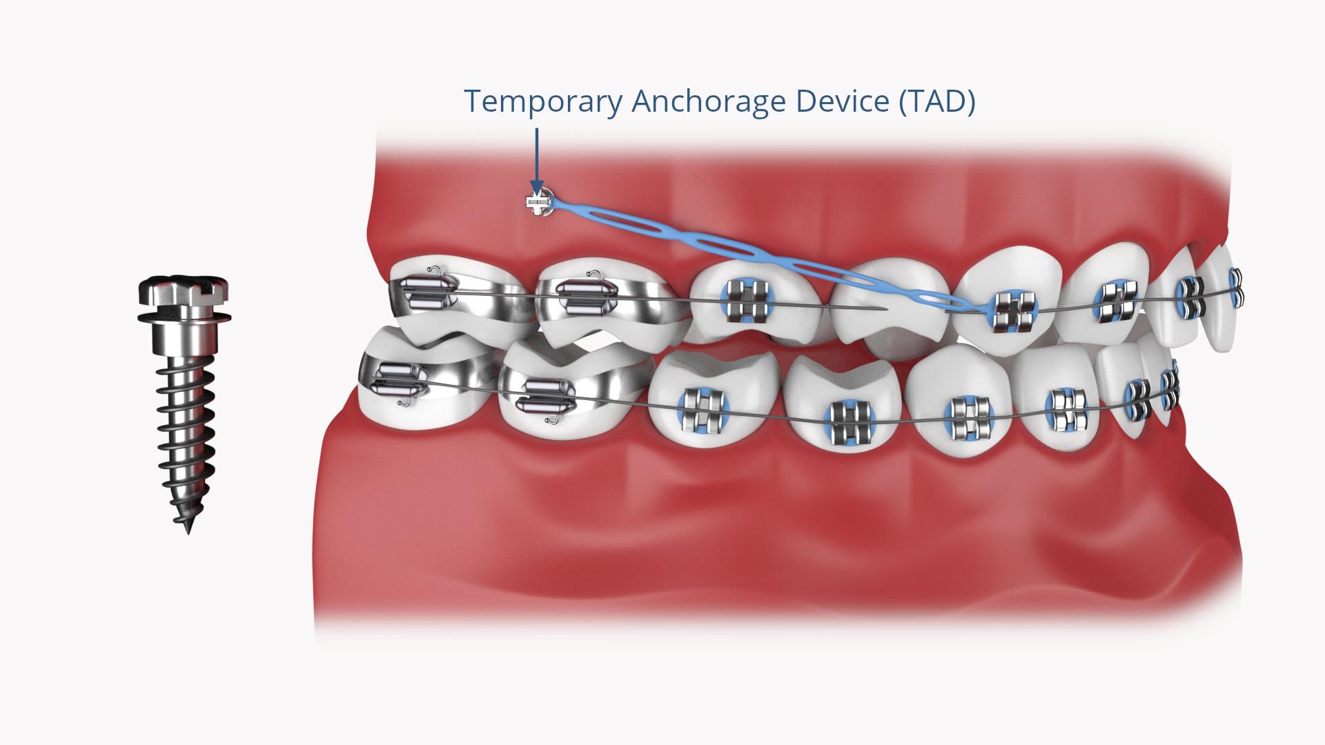 KFO Implantate TAD