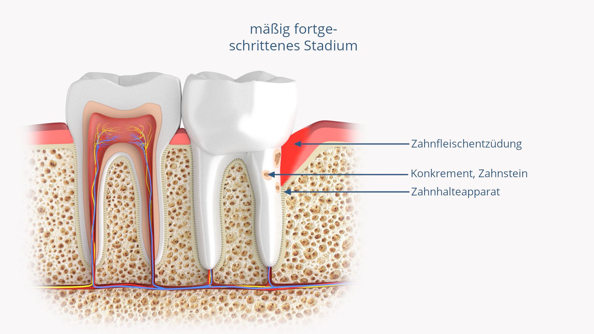 Keramik-Implantate