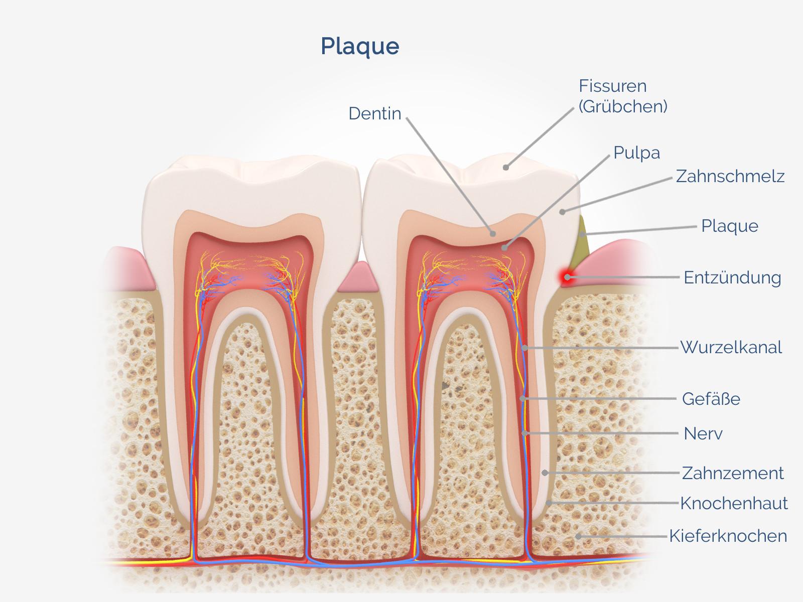 Plaque (Zahnbelag)
