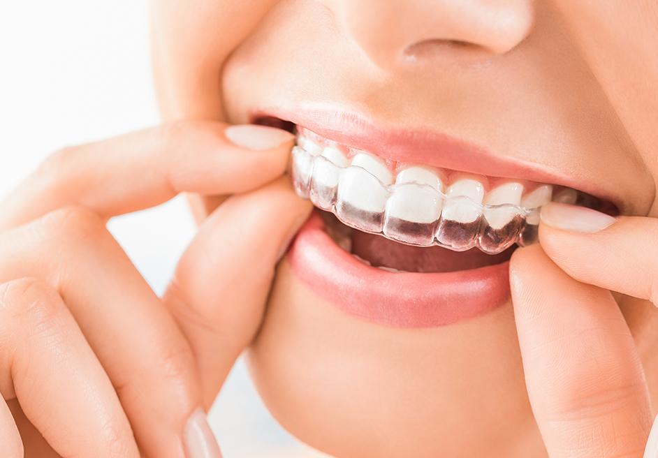 Schiefe Zähne behandeln