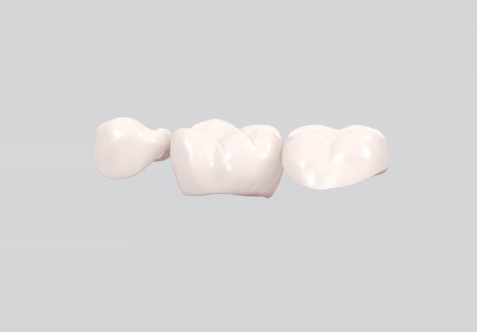Zahnbrücke Kosten