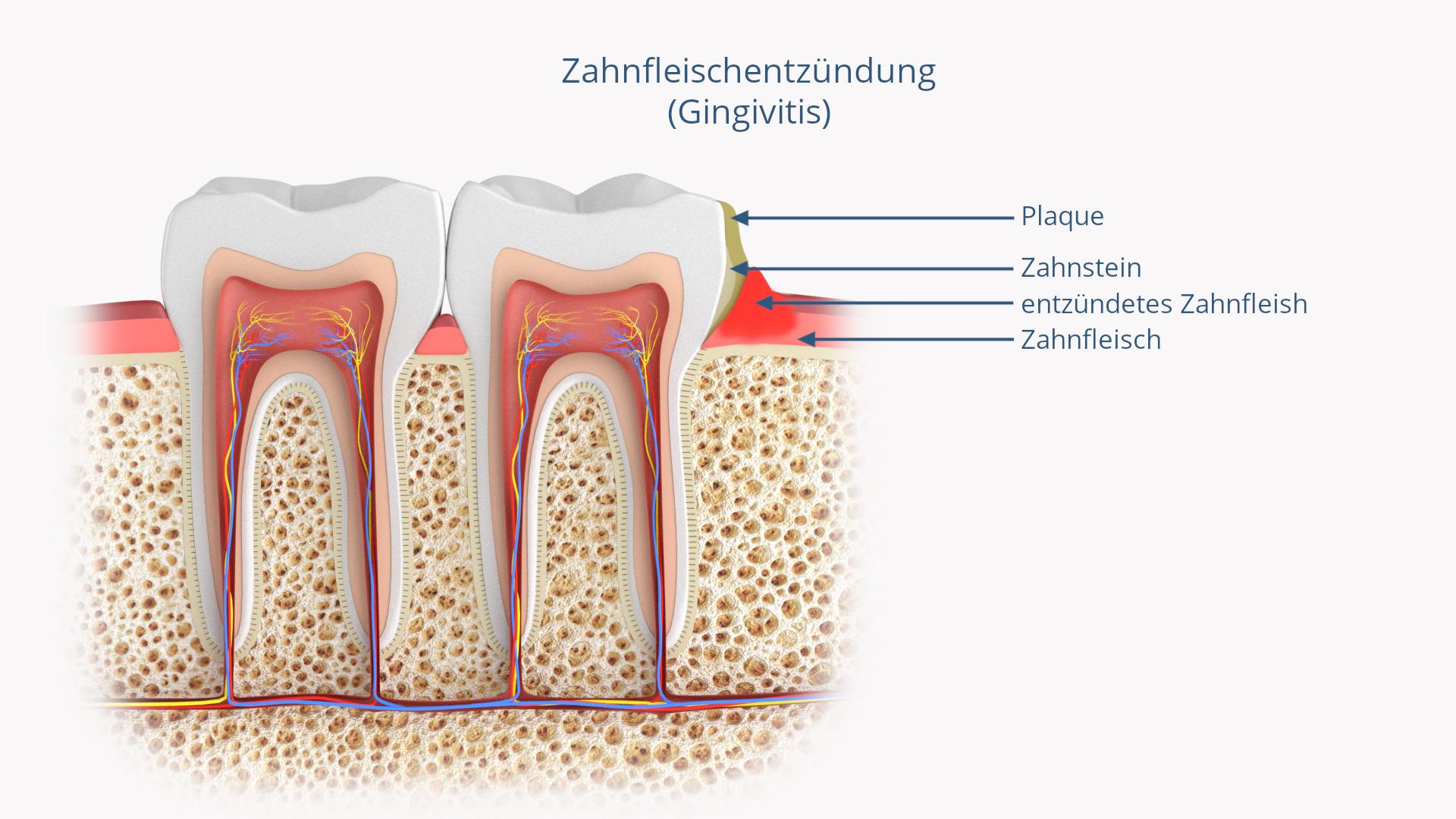 Zahnfleischentzündung (Gingivitis)