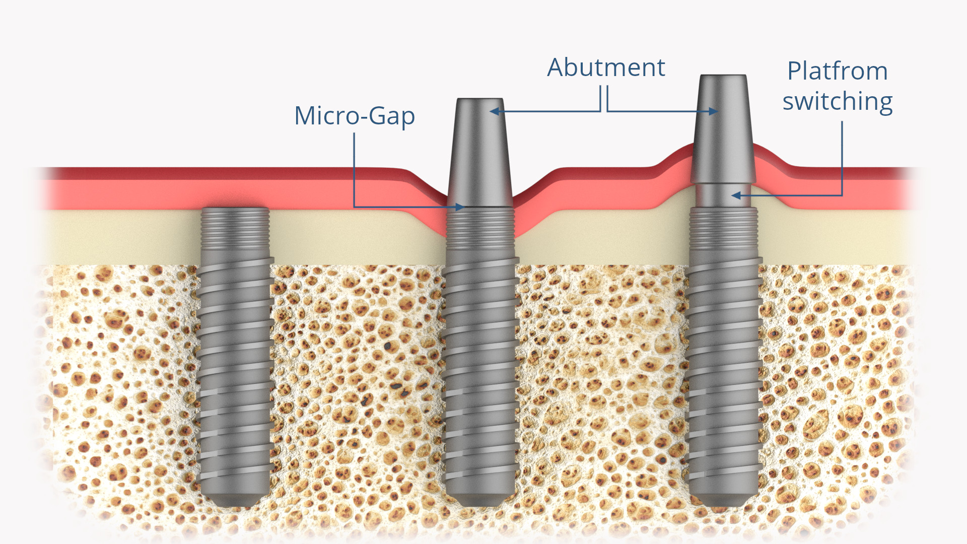 Zahnimplantat (Abutment, Micro-Gap, Plattform Switching)