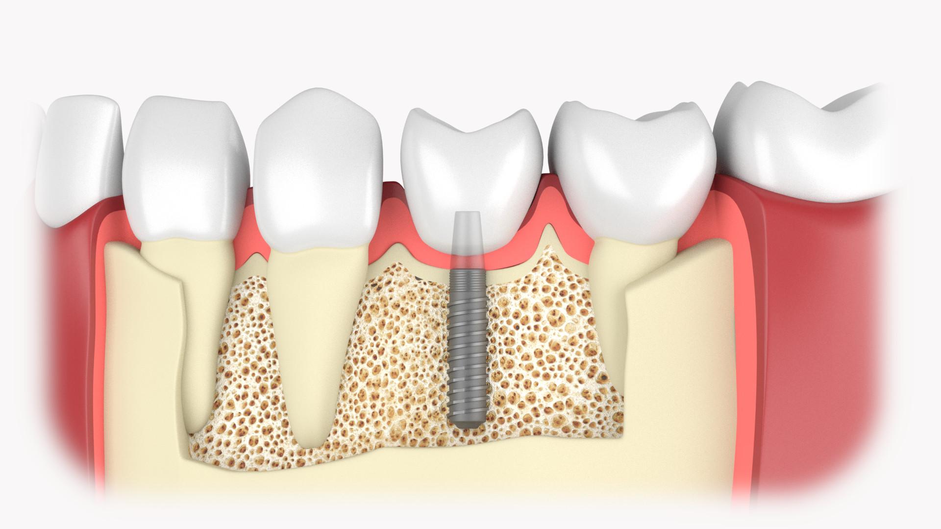 Zahnimplantat in Einzelzahnlücke