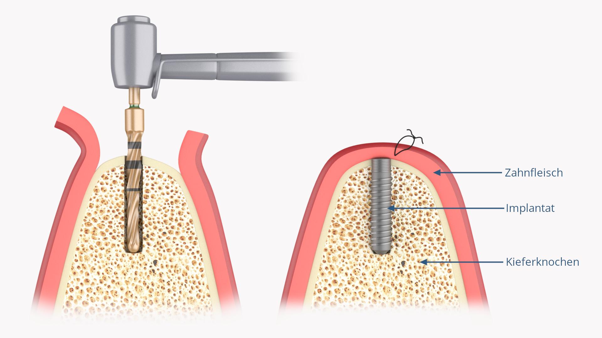 Zahnimplantat (rotationssymetrischer Implantatkörper implantiert)