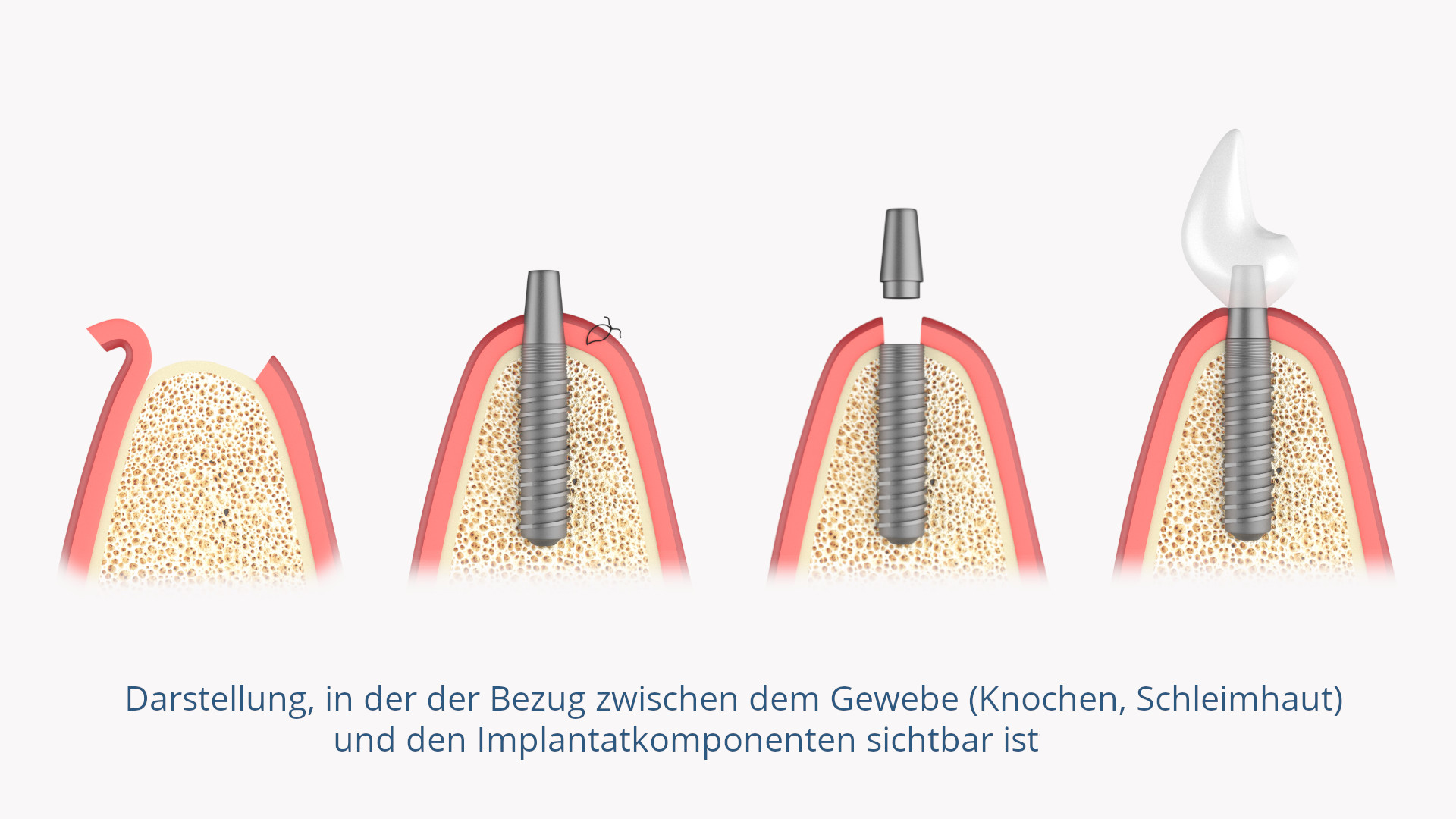 Zahnimplantat (Implantatkomponenten)