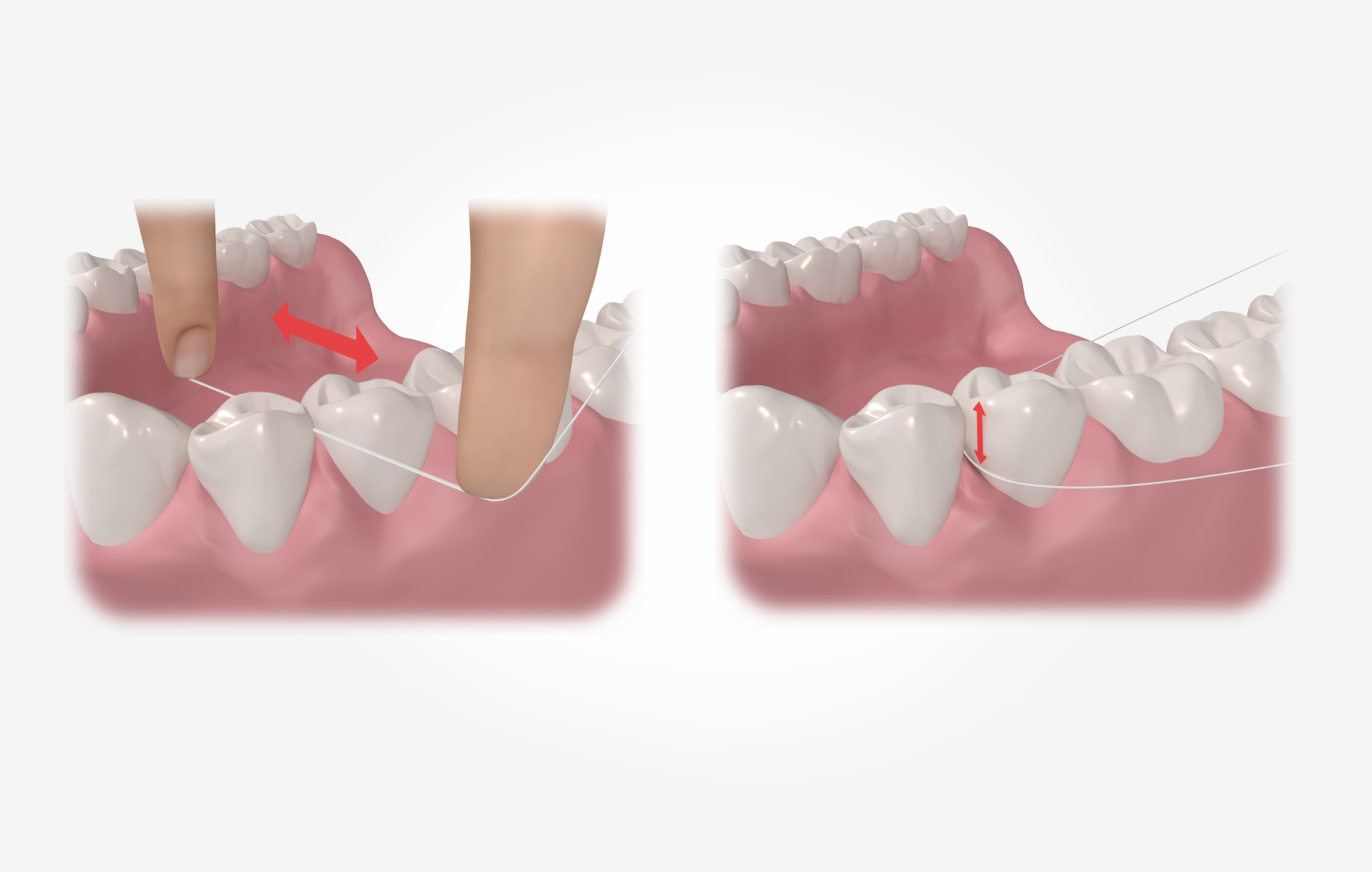 Zahnseide gegen Mundgeruch