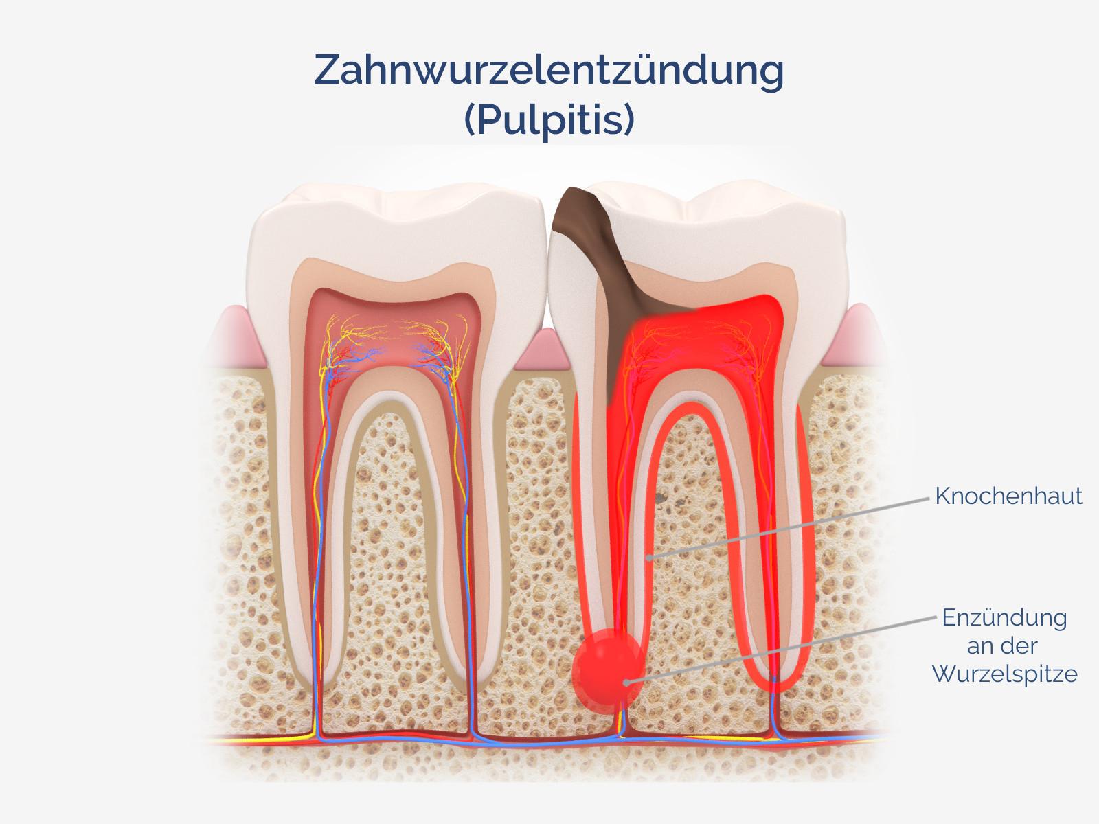 Zahnwurzelentzündung (Pulpitis)
