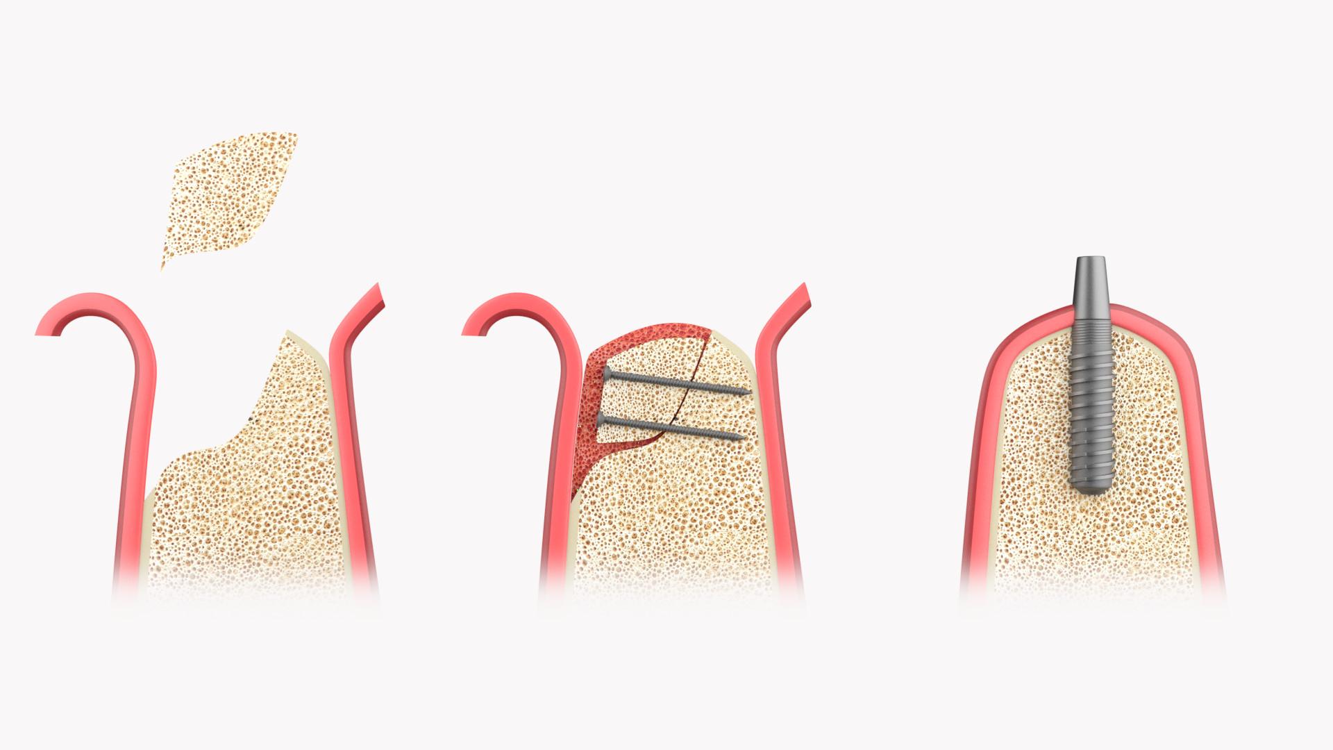 Autologer Knochenaufbau Kieferkammaugmentation