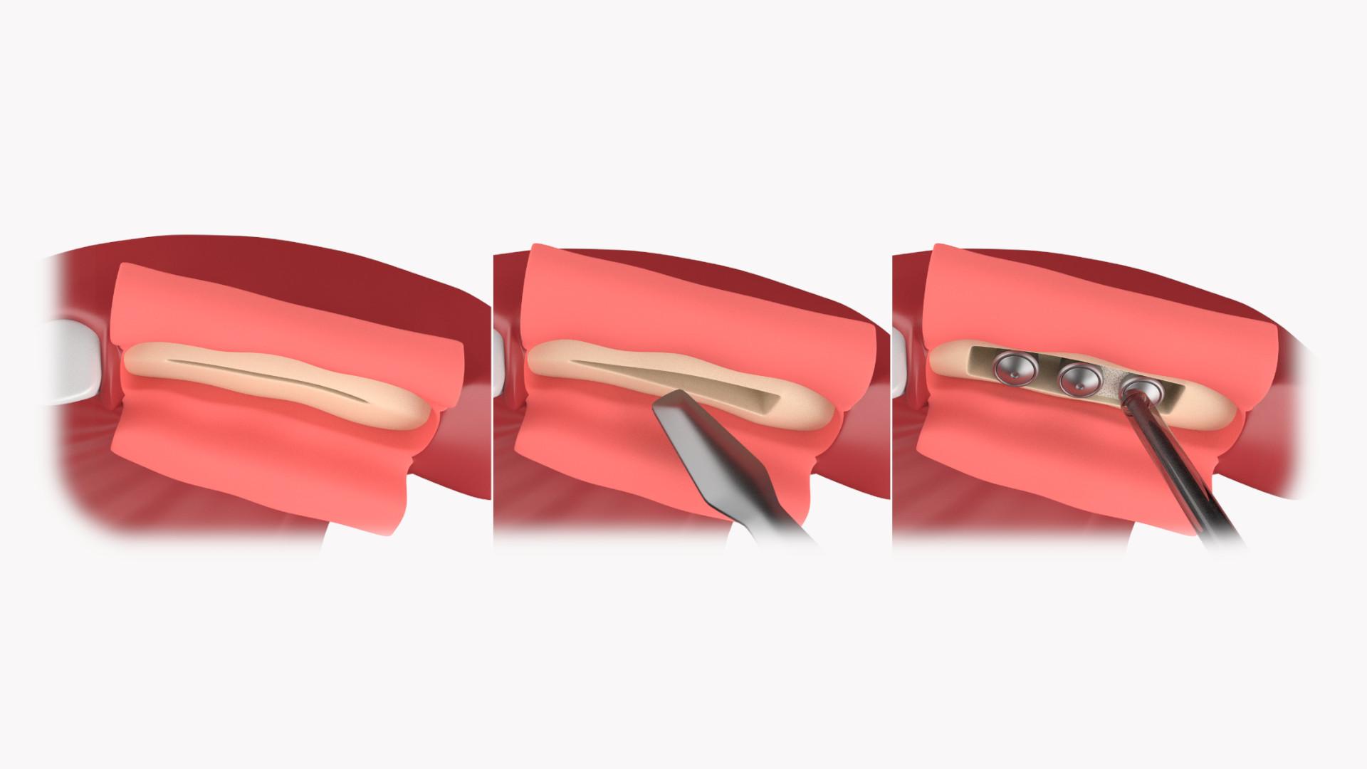 Knochenaufbau (Bone-Splitting)