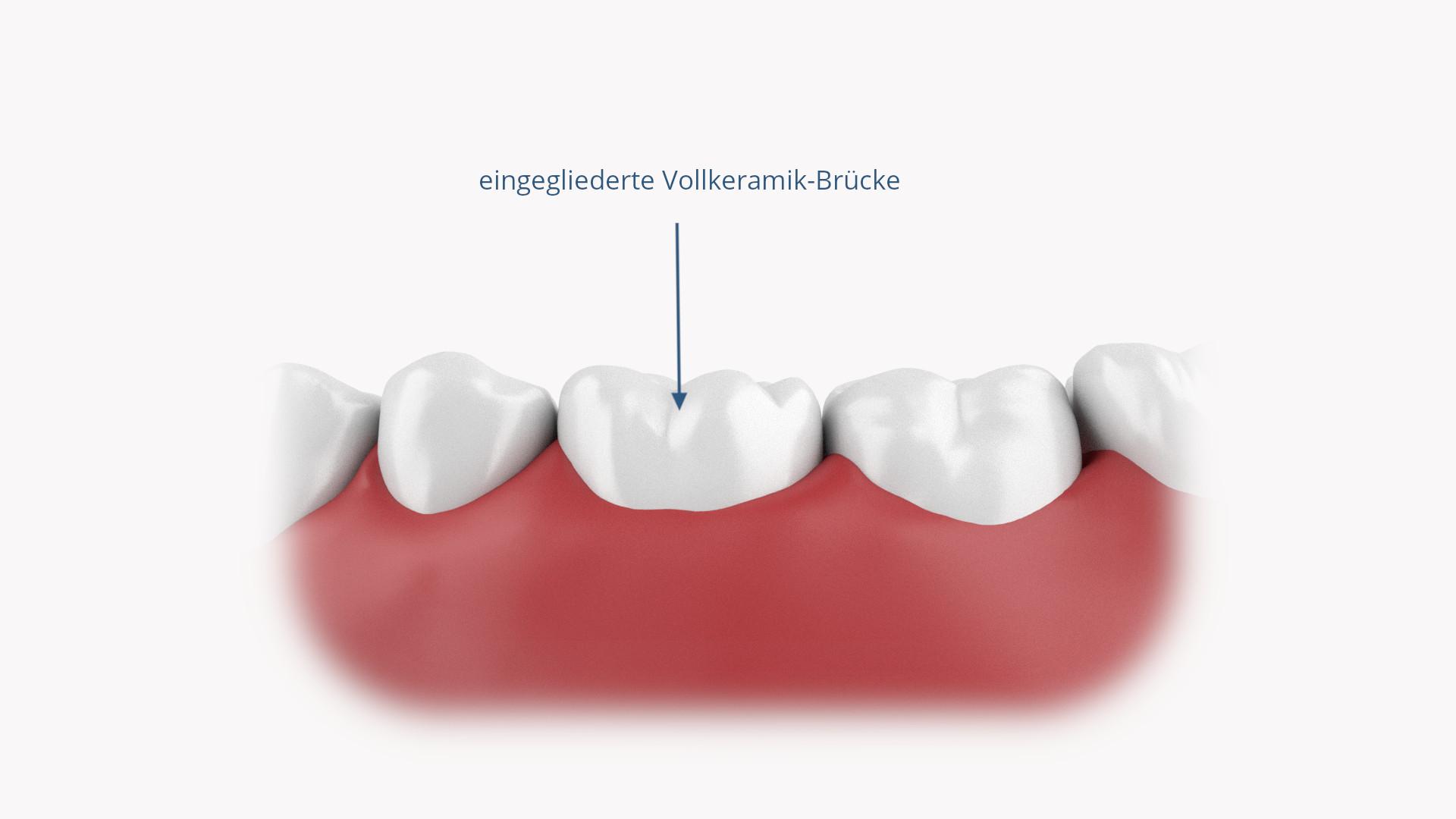 Eingegliederte Zahnbrücke