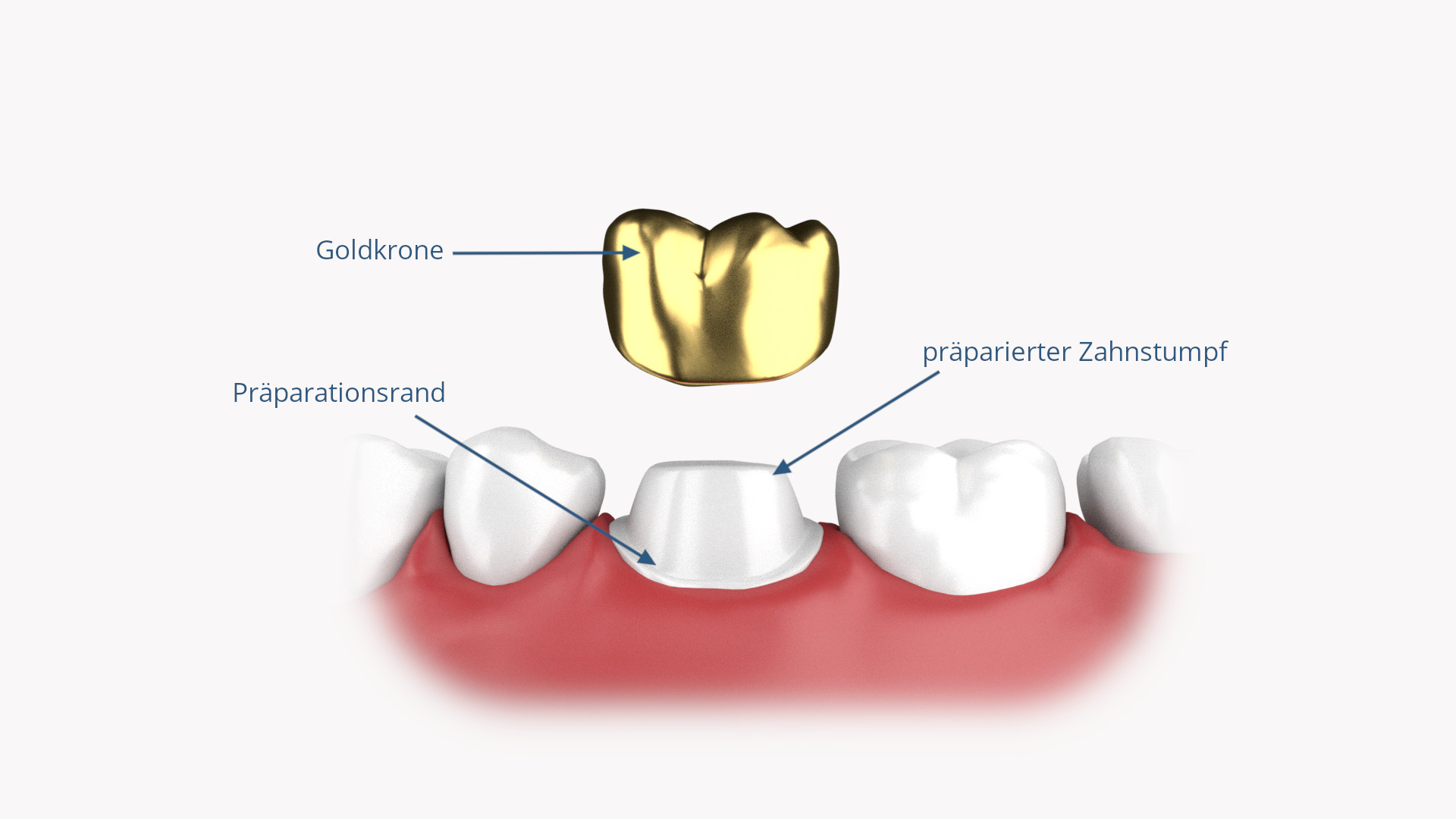 Zahnkronen-Goldkrone