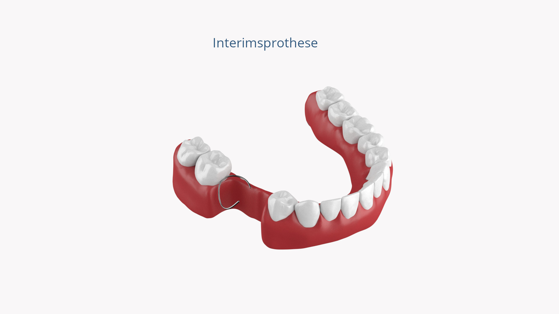 Interimsprothese