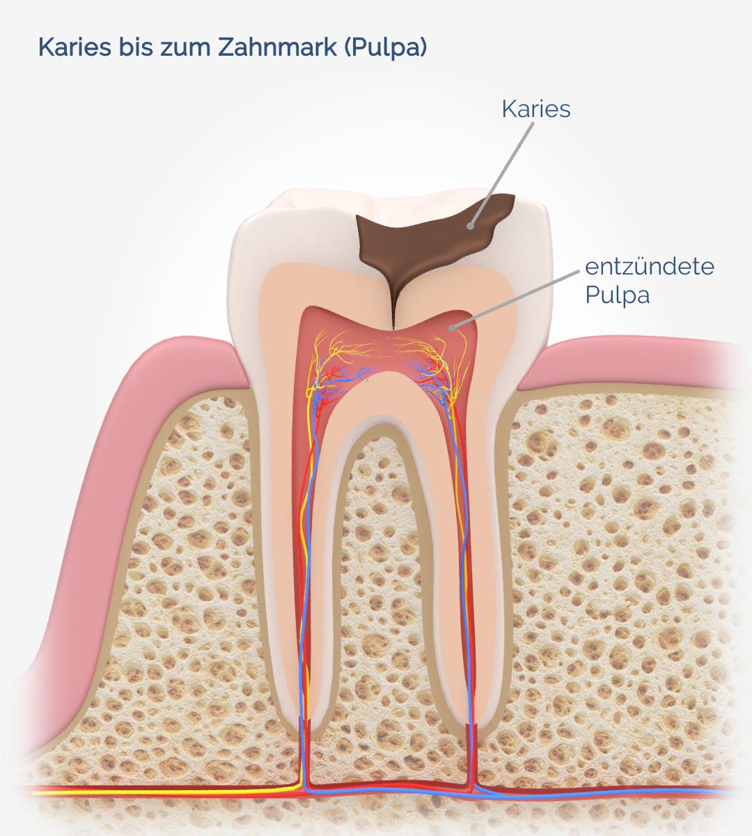 Karies bis zum Zahnmark
