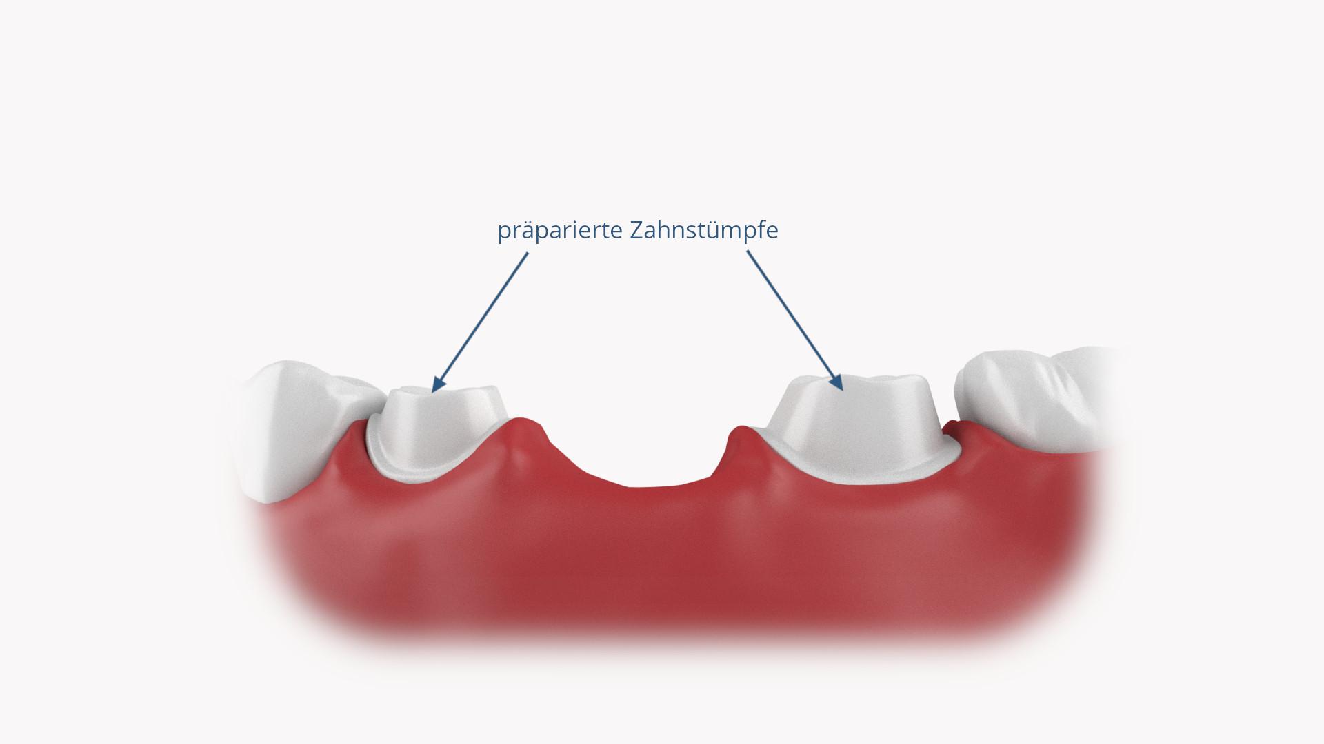 Präparierte Zahnstümpfe für Zahnbrücke