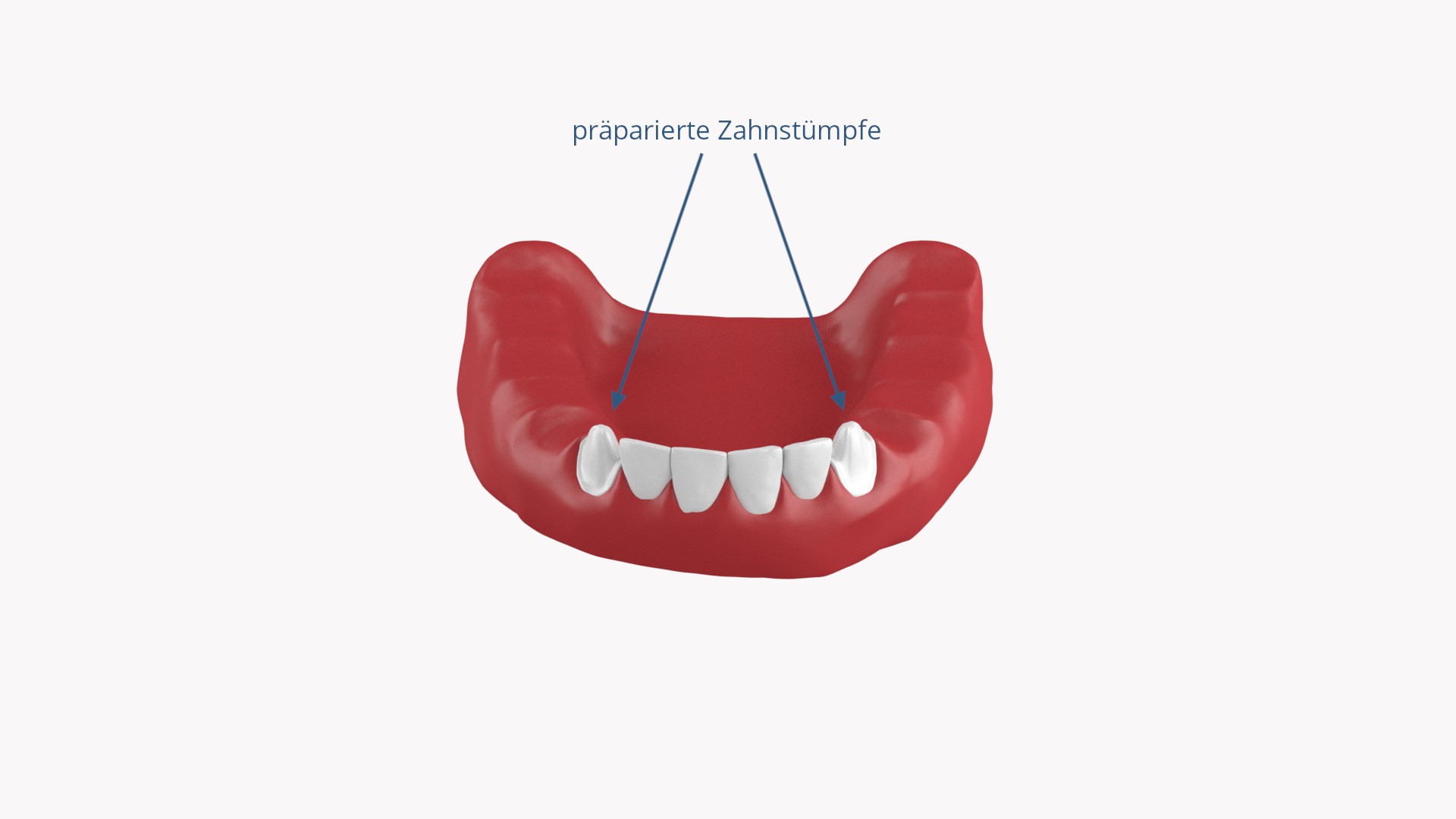 Präparierter Zahnstumpf