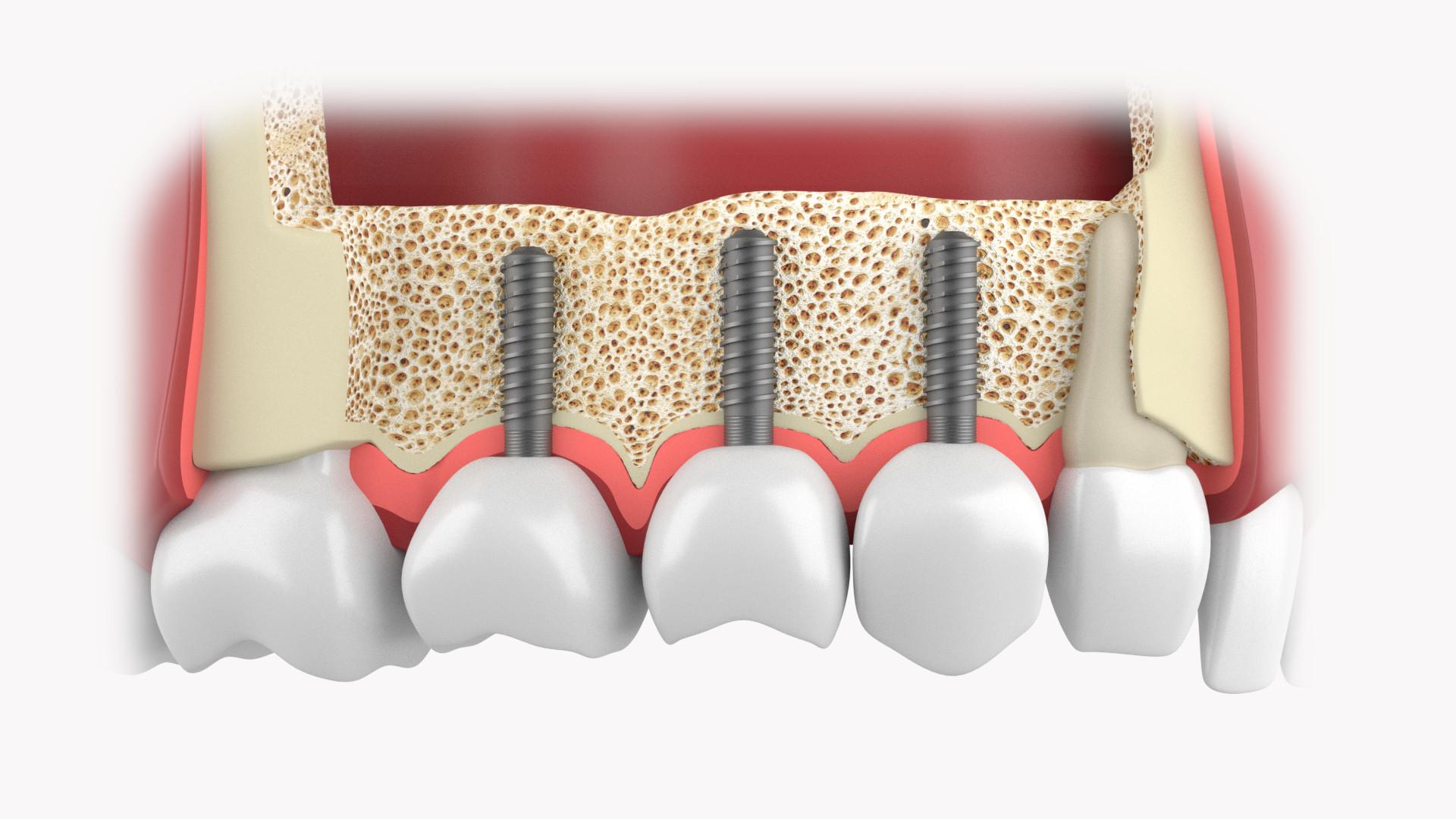 Schaltlücke Implantate