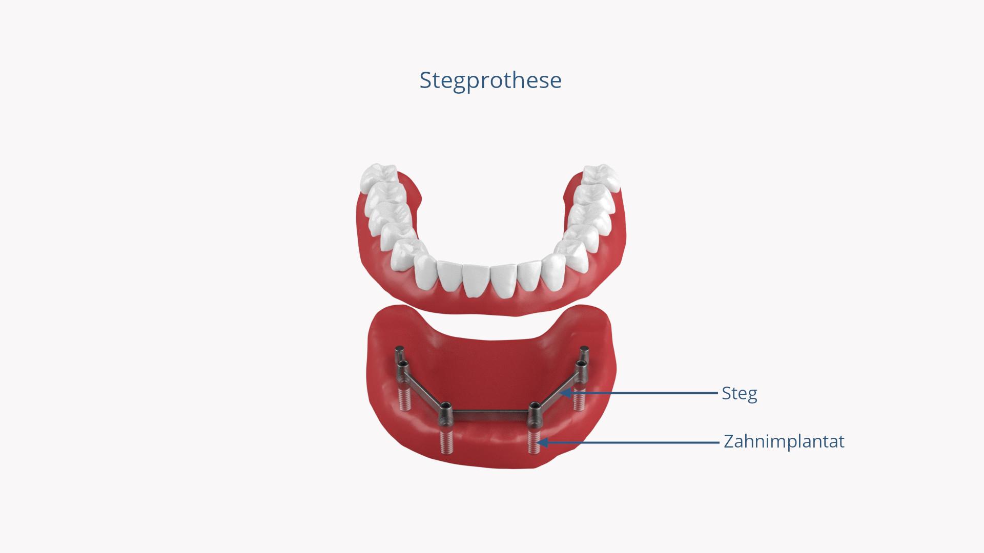 Stegprothese