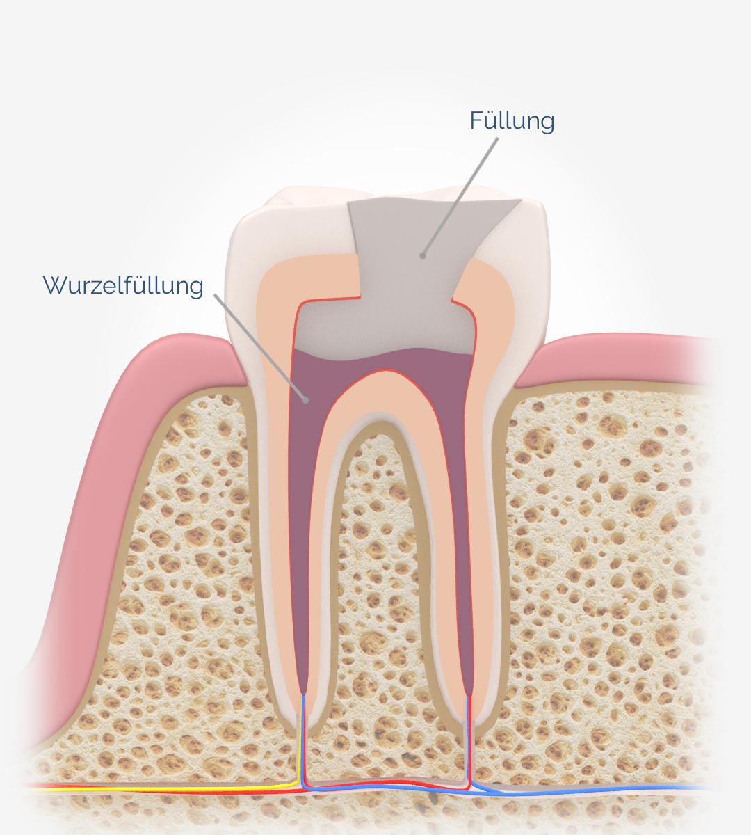 wurzebehandlung-zahnfuellung