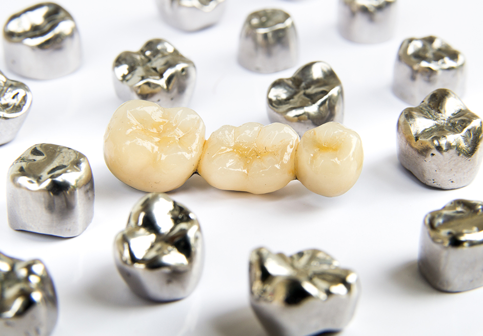 Zahnbrücken