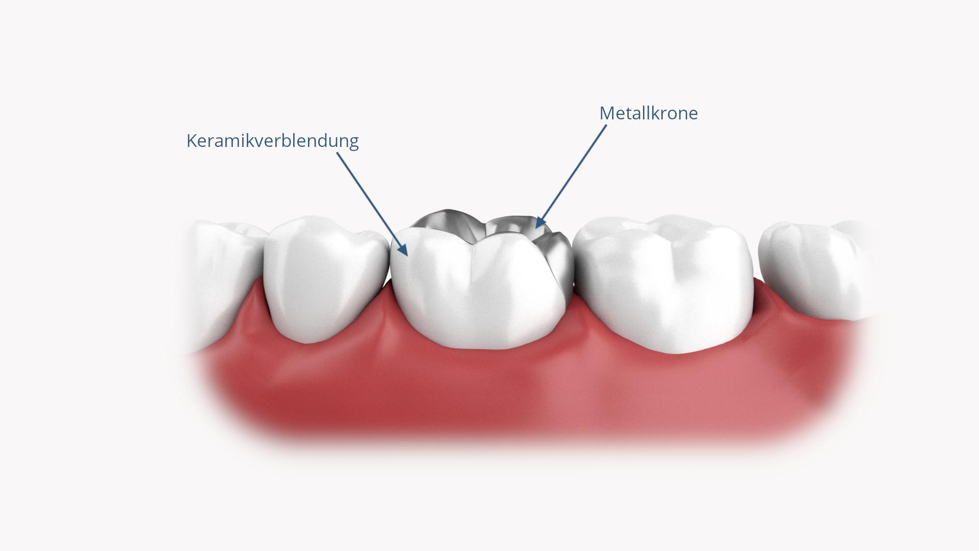 Verblendete Zahnkrone